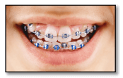 Orthodontics for your Health