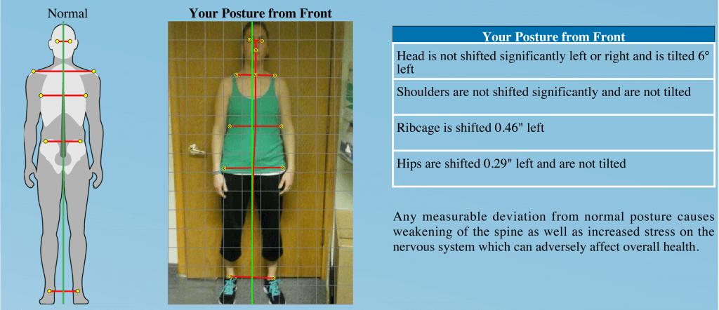 Posture Screening