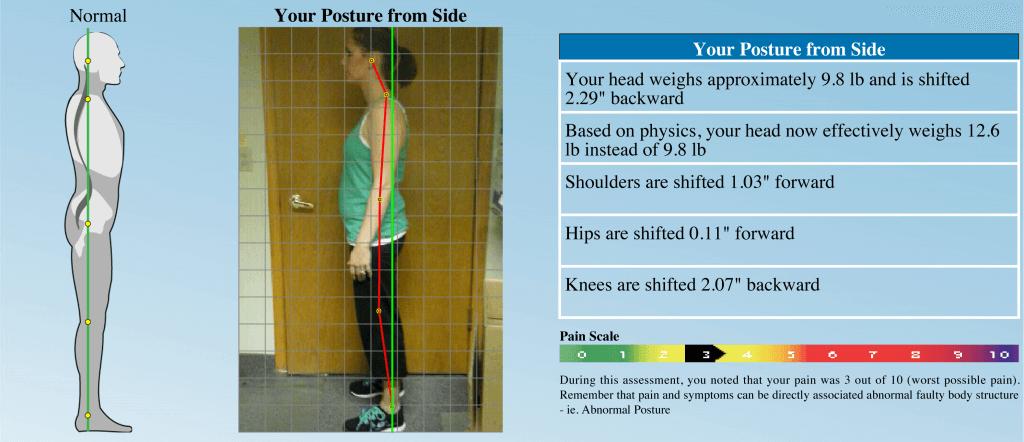 Posture Assesment
